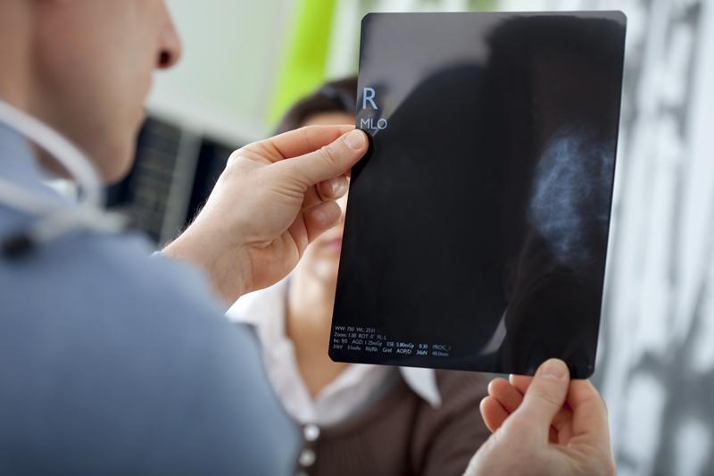 «Πόση ακτινοβολία δέχομαι με μία μαστογραφία;»
